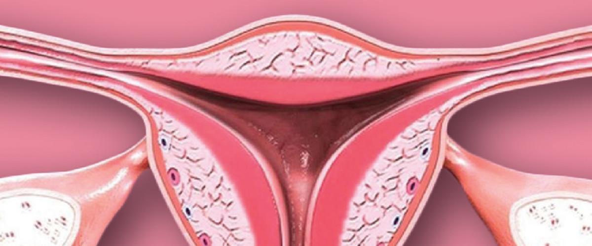 Rak szyjki macicy - Objawy, leczenie, zapobieganie